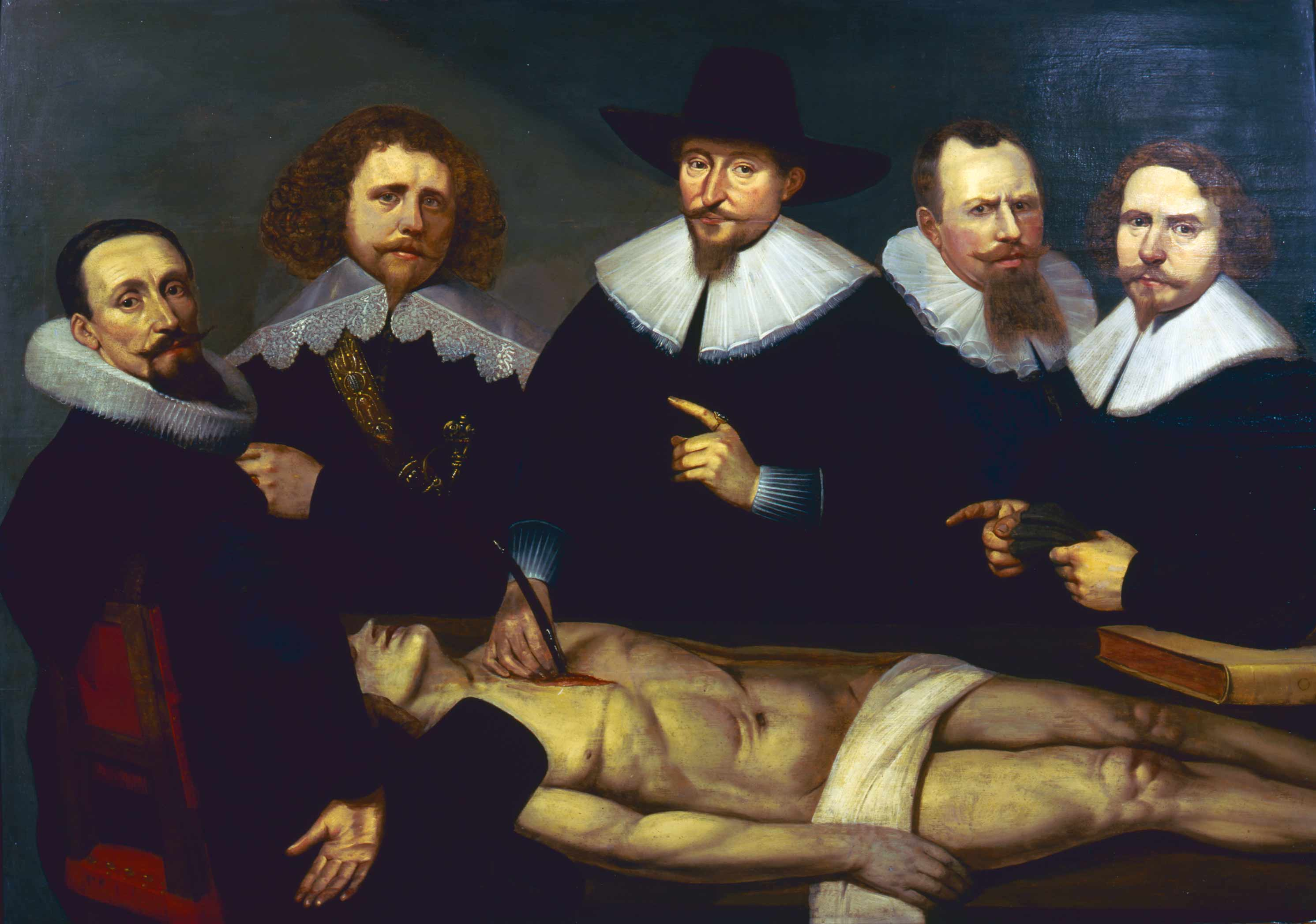 Luxury Rembrandt Anatomy Lesson Of Dr Tulp Component - Human Anatomy ...